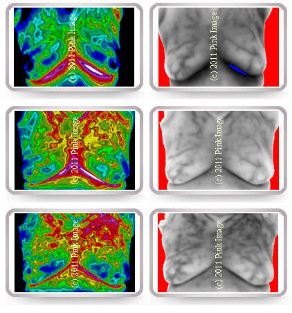 Thermography collin county breast
